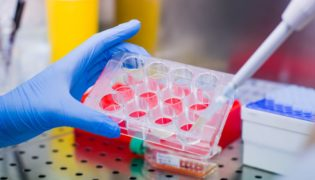 DNA-Tests – wahre Wunder in der medizinischen Diagnostik